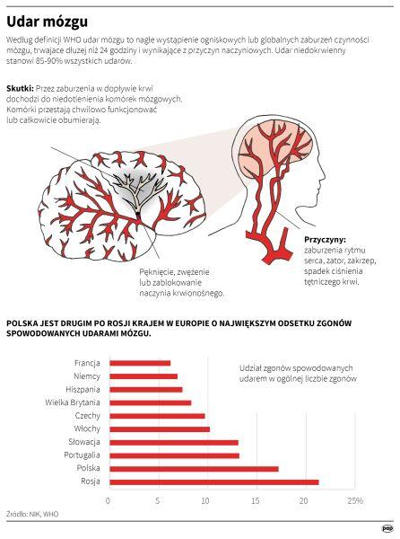 Udar mózgu (PAP/Adam Ziemienowicz)